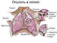 El tratamiento de cáncer de pulmón