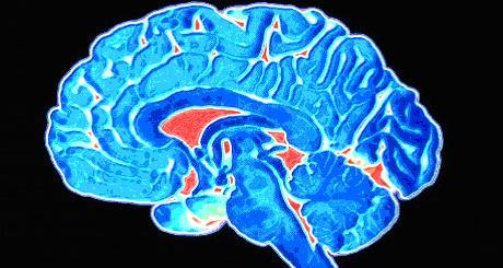 Gydymas smegenų vėžio
