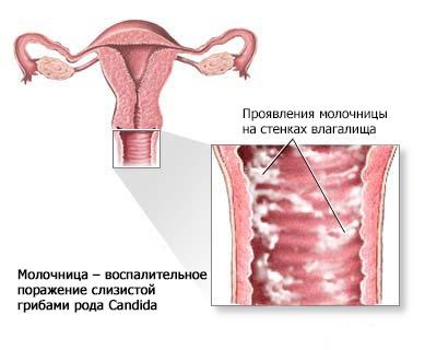 Признаки молочницы и лечение