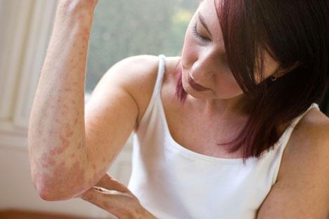 clinical manifestations of psoriasis