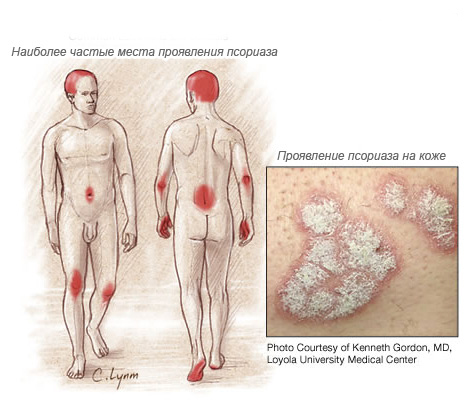 происхождение псориаза