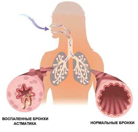 気管支喘息の治療