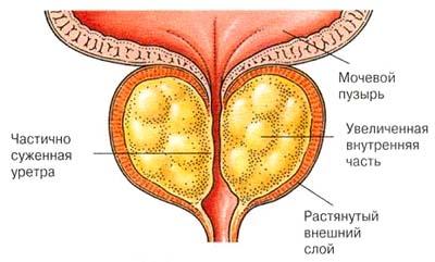 التهاب البروستات