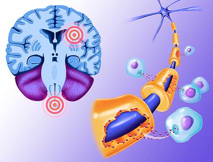 Методы лечения рассеянного склероза