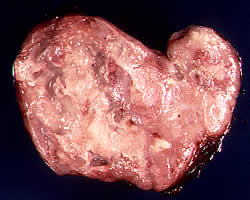 سرطان الغدد الليمفاوية الخبيثة