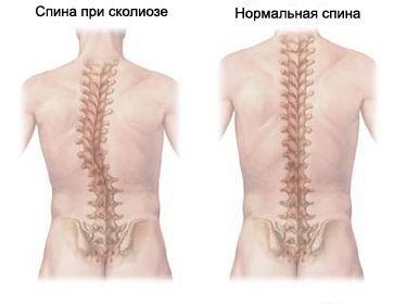 степени развития сколиоза
