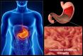 jak leczyć zapalenie żołądka
