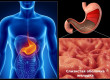 how to treat gastritis